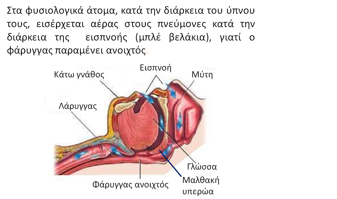 sxima-1