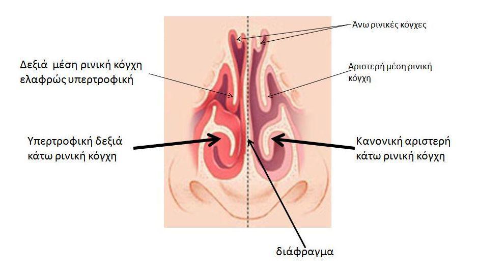sxima-3